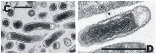 Figure: Scanning and transmission electron micrographs of Acidobacteria isolate K22. Scale bar = 1 µm.