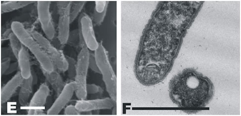 Figure 1: Scanning and transmission electron micrographs of candidate division OP10 isolate P488. Scale bar = 1 µm.